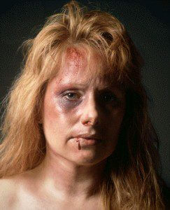 battered_woman_2_large-243x300